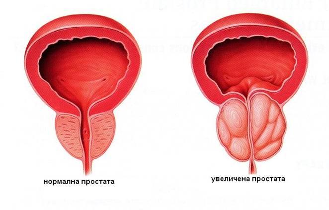 Народные методы эффективного лечения простатита